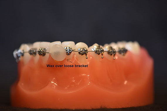 Loose Bracket with Wax