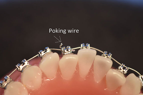 Bracket Came Off Tooth But Still On Wire | Emergency Care Sayre Orthodontics Bozeman Mt