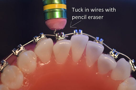Tick In Wire With Pencil Eraser