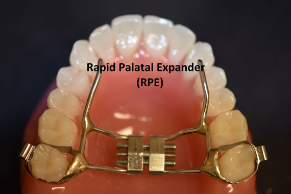 Normal Rapid Palletal Expander