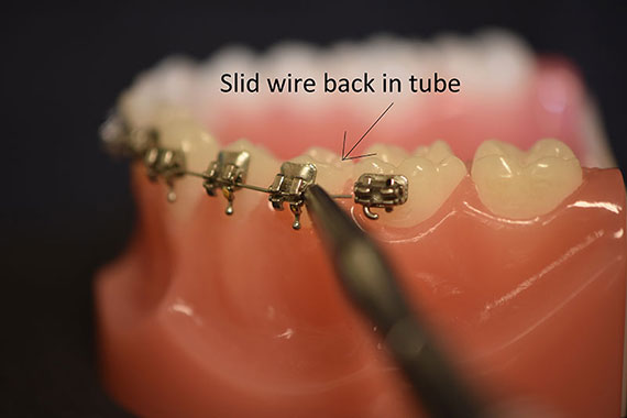 Slide Wire Back In Tube
